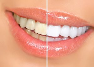 Teeth Whitening at North Haven CT